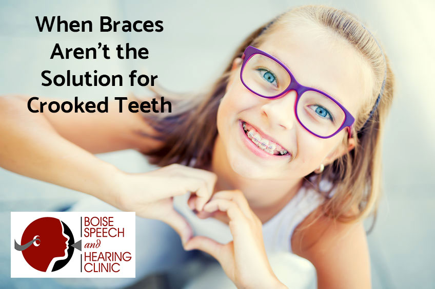 When Braces aren't the Solution for Crooked Teeth